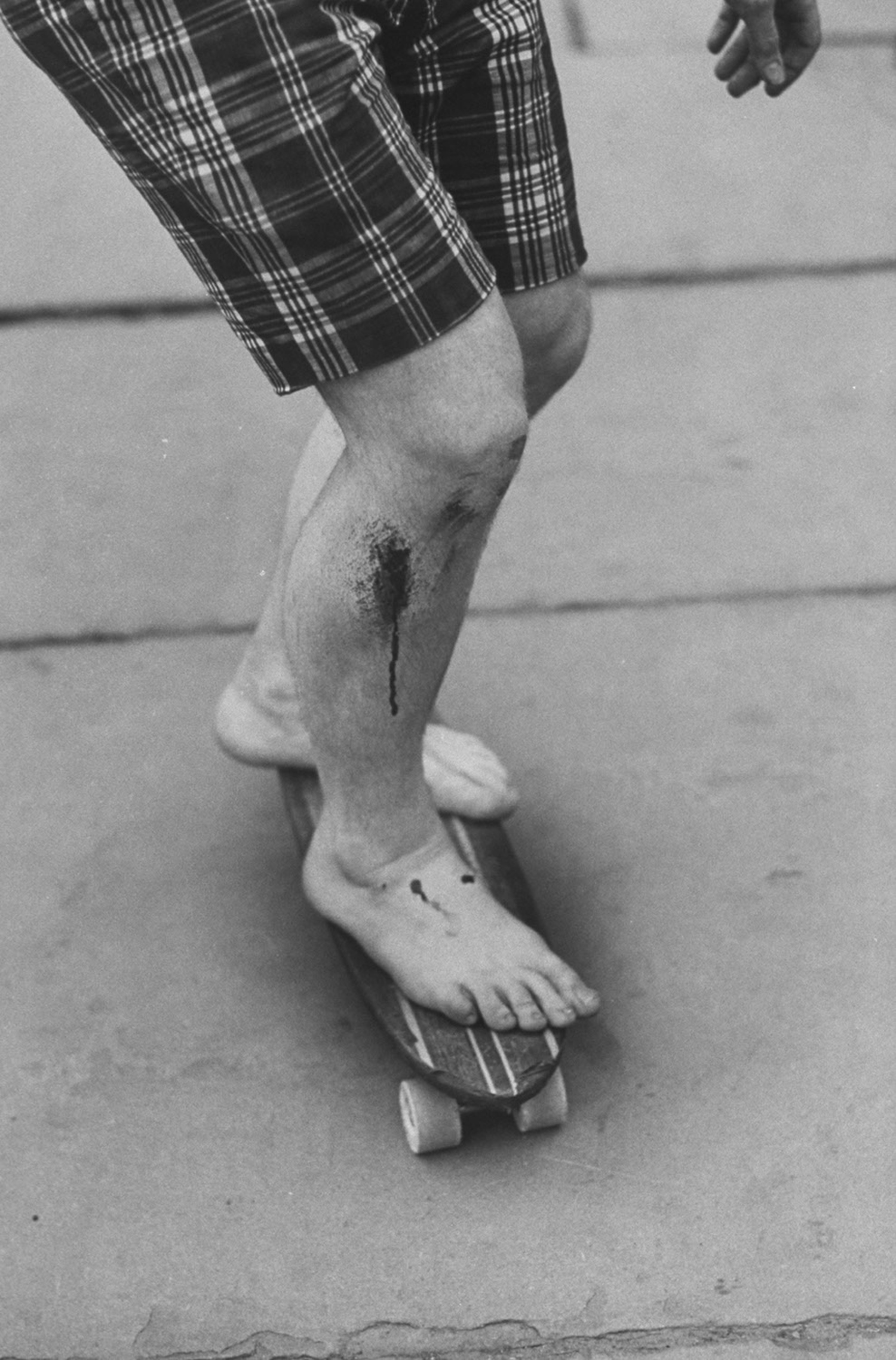 A barefooted skater shows off some fresh road rash.